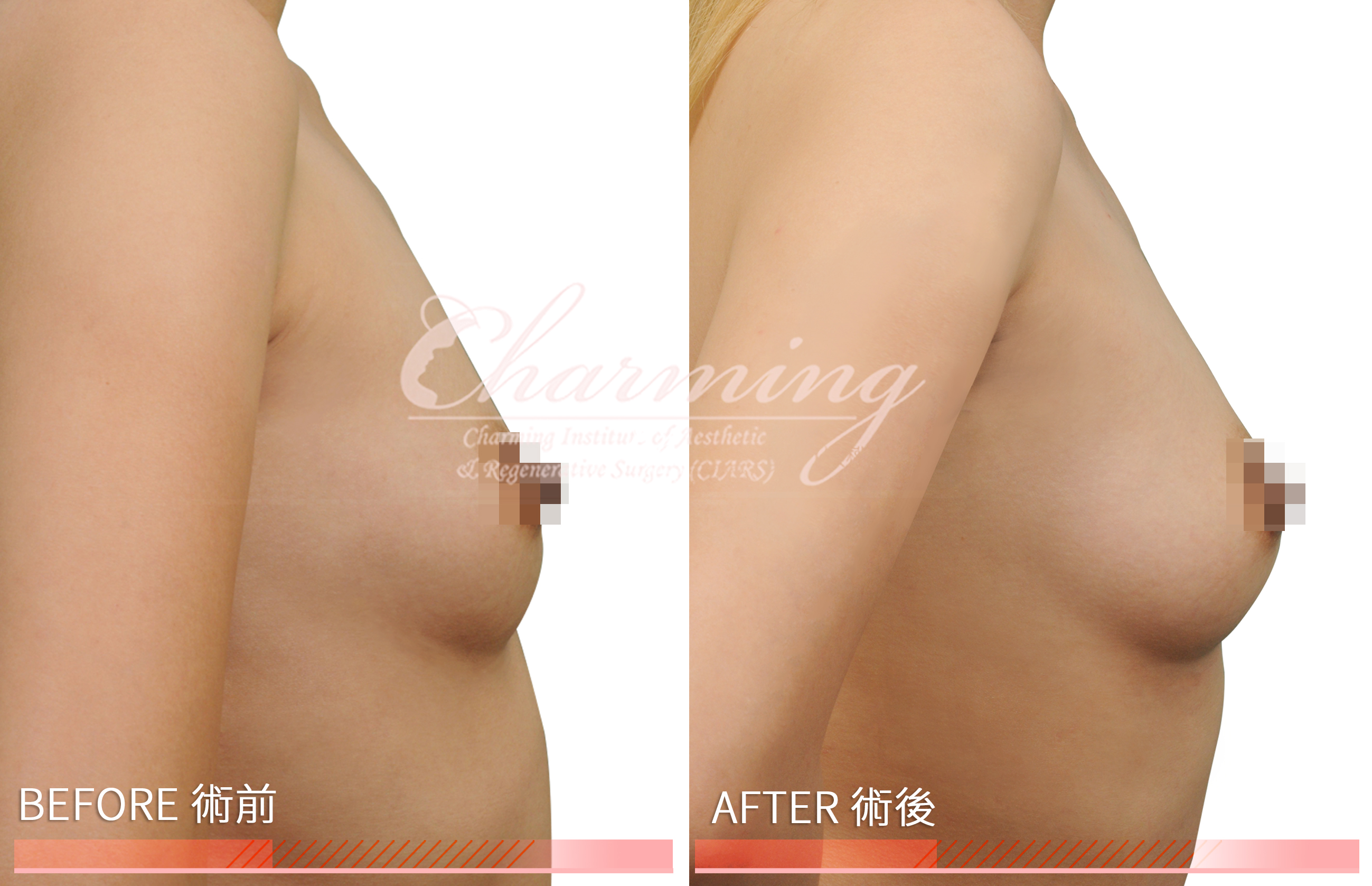 breast-mother-before-after-1