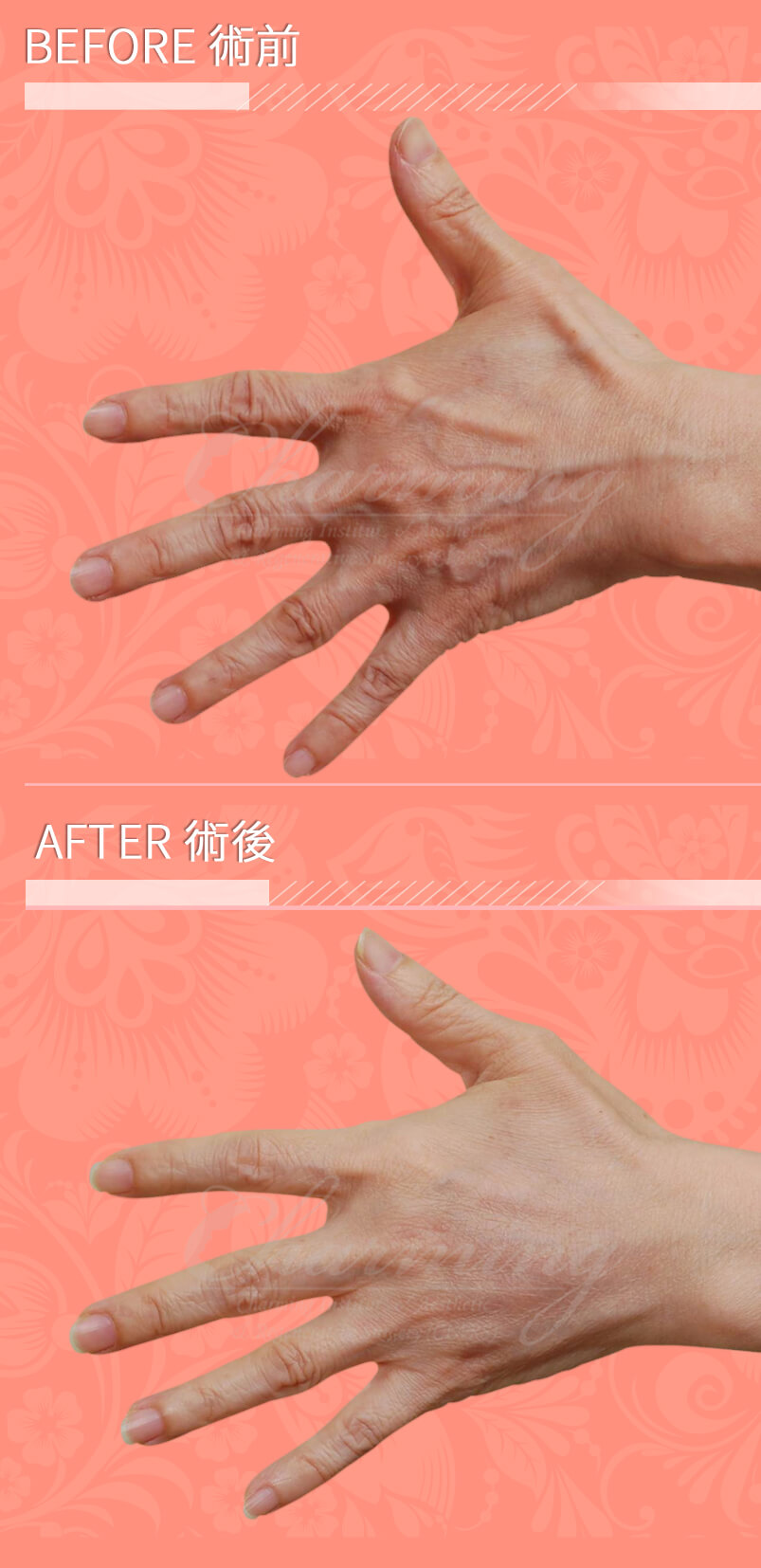 hand-L-before-after