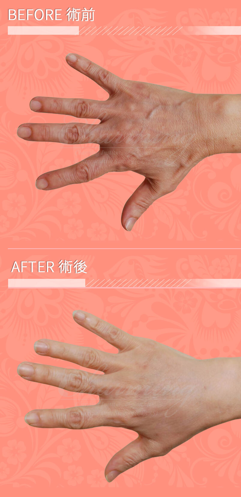 hand-R-befter-after
