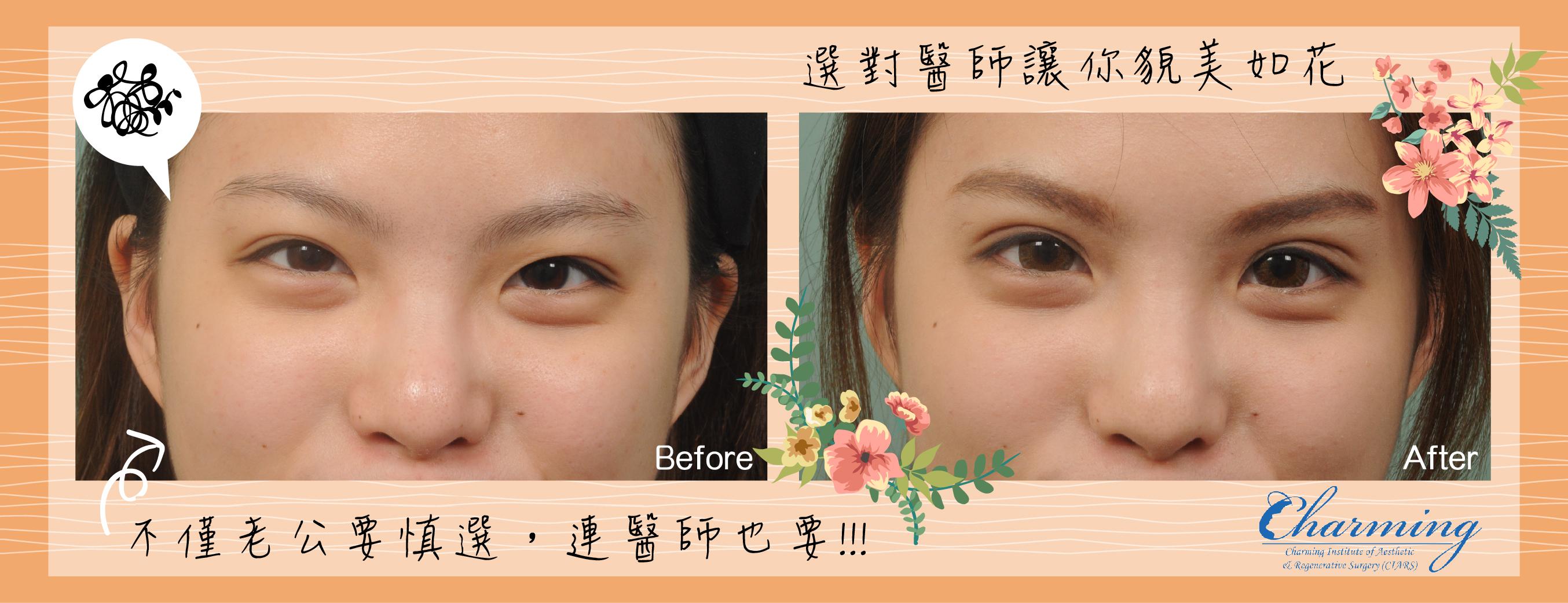 eyelids-03