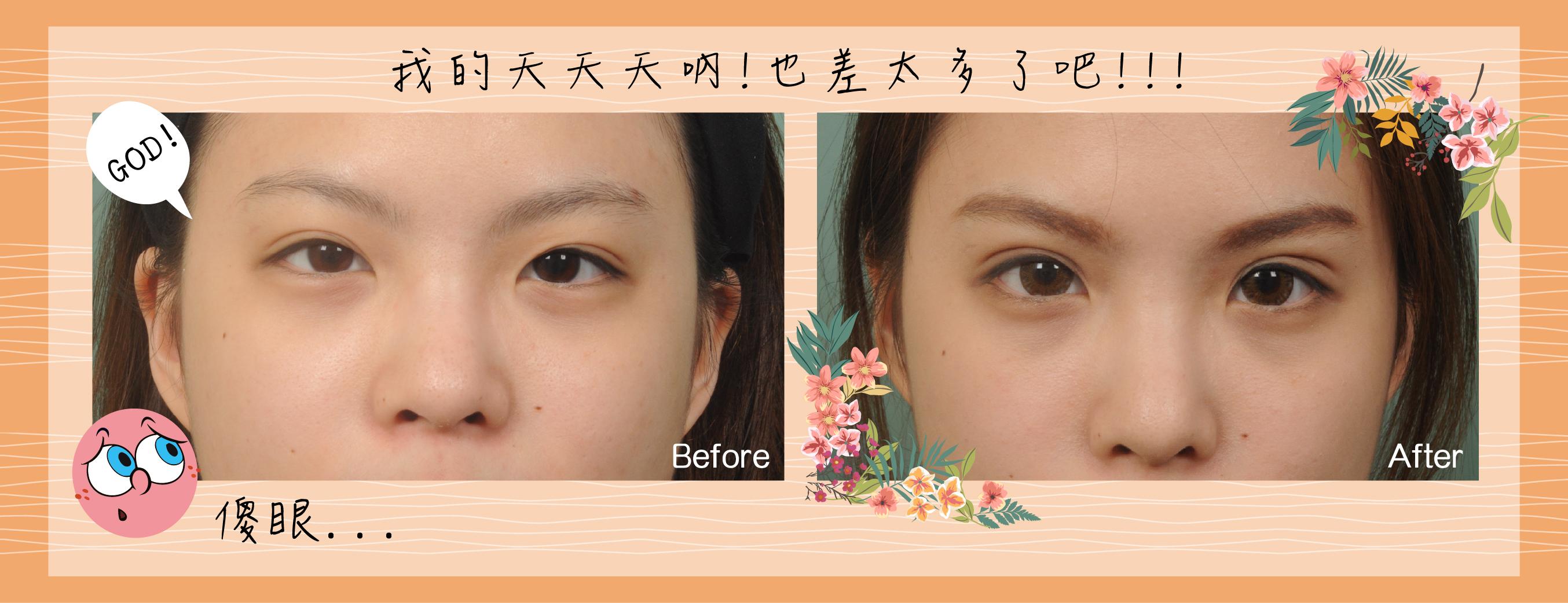 eyelids-04