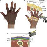 【恭賀!本院最新治療『手背老化』論文,於國際期刊正式刊登】